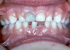 Verfärbt zahn grau Grau verfärbter